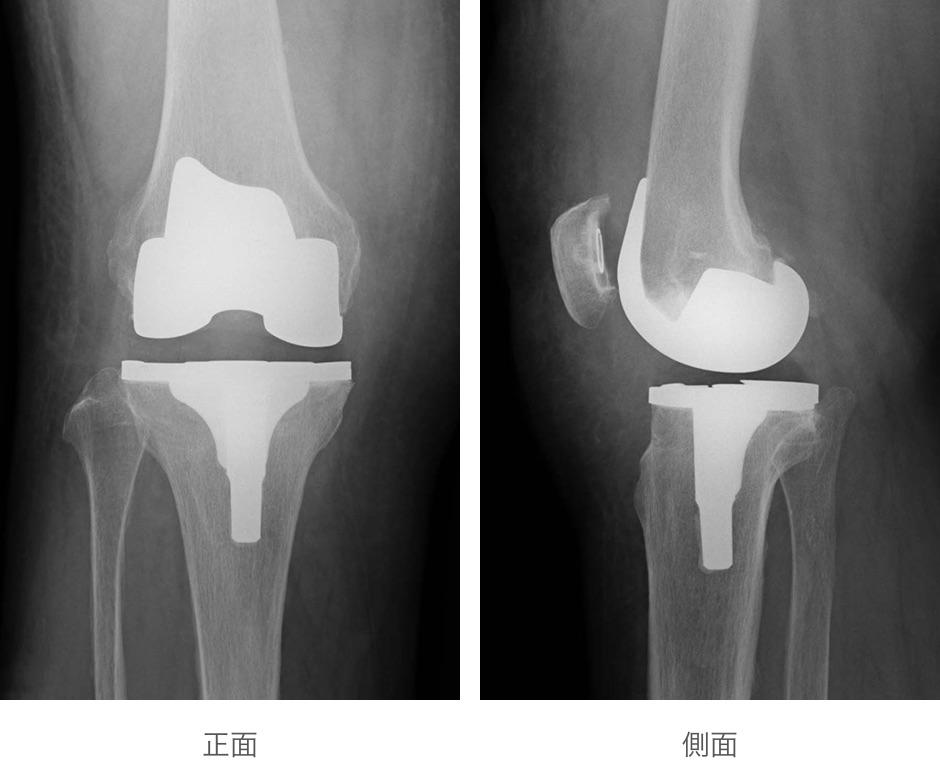 全人工膝関節置換術