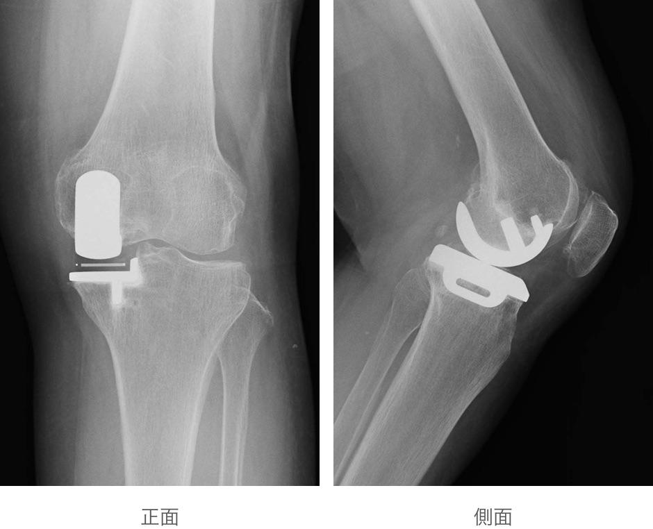 単顆型人工膝関節置換術