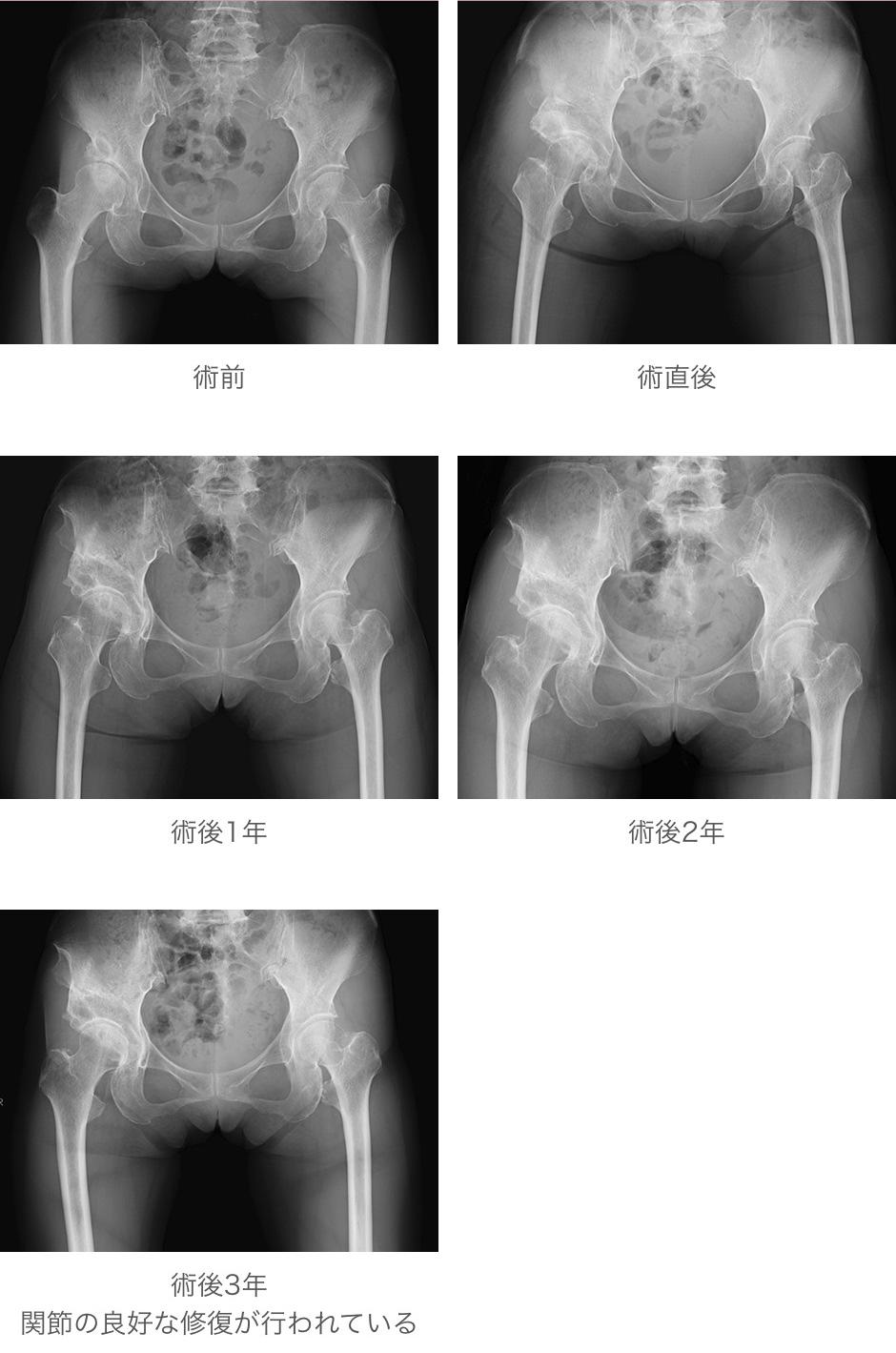 臼蓋回転骨切り術