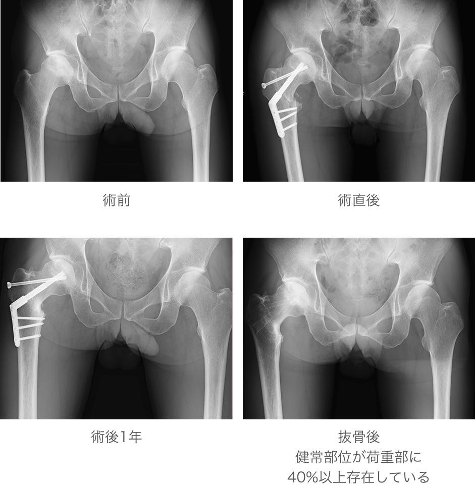 大腿骨転子間弯曲内反骨切り術(大腿骨頭壊死に対して)